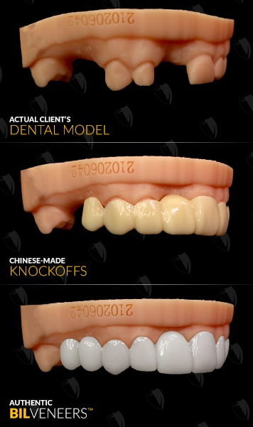 Authentic Bil Veneers - No Thermoform - Not Made In China!